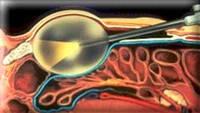 Центр уроандрологии - лапароскопические операции